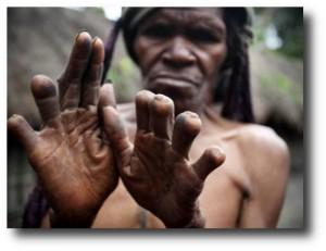 2. Corte de dedos