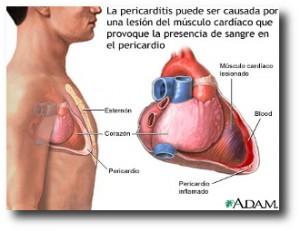 3. Cirugia de coraz+¦n abierto
