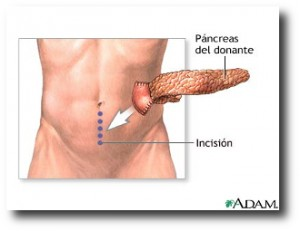 8. Transplante de pancreas
