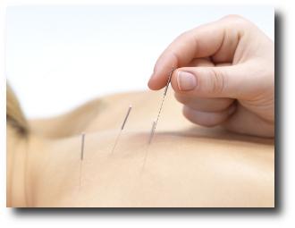 Los 10 mejores beneficios de la acupuntura