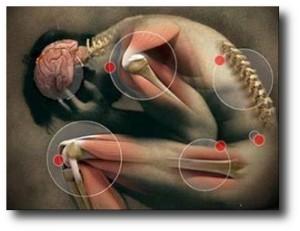8. Artritis
