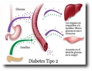 9. Diabetes tipo 2
