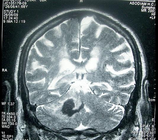 Derrames cerebrales