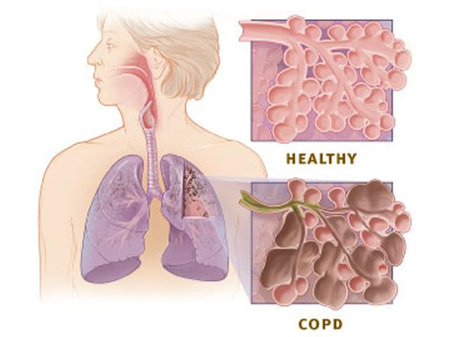 Dolencias pulmonares