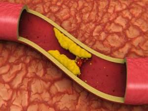 6. Colesterol en la sangre