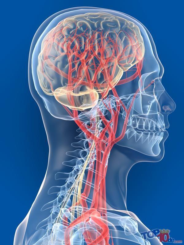 Cerebral_vascular_accident